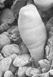 Echinococcus in der Mucosa3